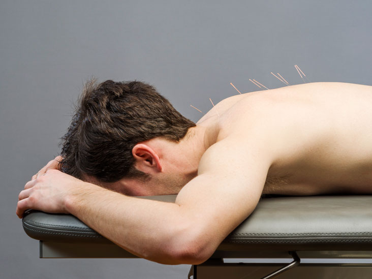 Acupuncture, natural treatments for erectile dysfunction